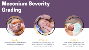 meconium severity grading scale