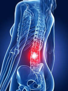 Back Injury Settlements | Value of Injury Claims