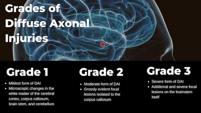 Diffuse Axonal Brain Injuries | Baltimore, Maryland Car ...