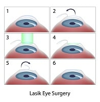 eyesurgerymistakes