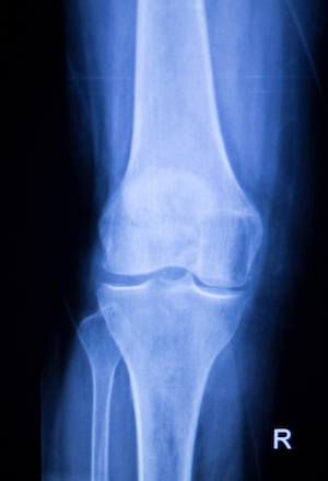 Broken Leg Injury Claims Xray