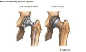 Hip Replacement Lawsuit: Claims and Settlements for