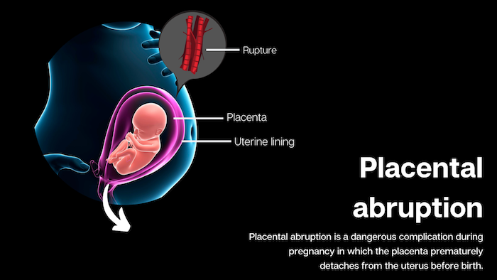 Placental Abruption Infographic
