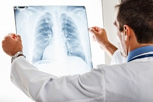 radiology malpractiice in Maryland