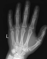 Hand, Wrist & Finger Injury Settlements | Value of Your Case